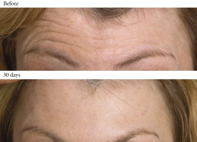 คำอธิบาย: http://www.nonsurgicalskincare.com/wp-content/uploads/2012/05/Botox-for-Lines-in-the-Forehead-.jpg