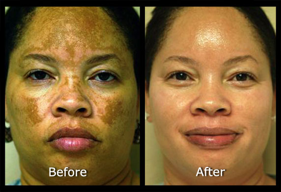 คำอธิบาย: http://www.suddenlyslimmer.com/images/spa_uploaded_images/Larg11_12_2011melasma.jpg