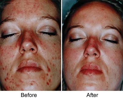 คำอธิบาย: http://www.athomechemicalpeel.org/wp-content/gallery/chemical-peel-acne/chem-peel-acne.gif