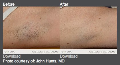 คำอธิบาย: http://www.drshel.com/wp-content/uploads/2011/08/laser-hair-removal.jpg