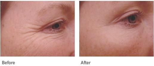 คำอธิบาย: http://www.drzend.com/sitebuildercontent/sitebuilderpictures/botox-face2.jpg