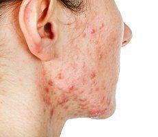 ผลการค้นหารูปภาพสำหรับ coolglide acne