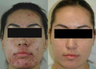 คำอธิบาย: http://www.ultimateimagetampabay.com/images/ba/acne-rosacea-pinellas.jpg