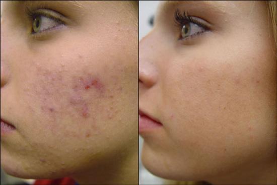 คำอธิบาย: http://1.bp.blogspot.com/_HZfBBkiSgZg/TIdO2__cxCI/AAAAAAAAAZE/HLlrwwPR8HQ/s1600/acne-scars.jpg