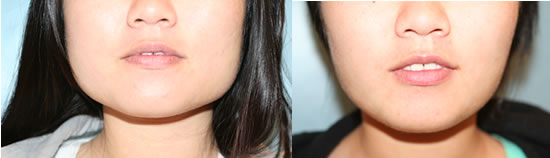 คำอธิบาย: http://www.skindoctorleeds.co.uk/td-admin/modules/gallery_management/images/botox-jaw-line-reduction2.jpg