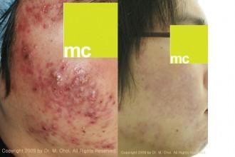 คำอธิบาย: http://mcmedgroup.com/eng/wp-content/uploads/et_temp/levulan-blue-light-acne-pdt.gif-117424_330x220.jpg