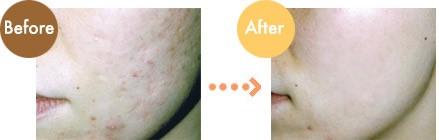 ผลการค้นหารูปภาพสำหรับ acne scar growth factors
