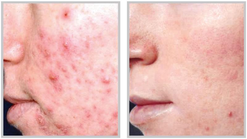 คำอธิบาย: http://www.afterglowskincare.ca/images/before-after/acne-scars3.jpg