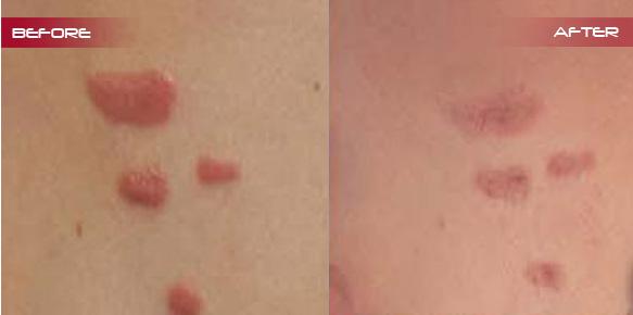 Description: http://www.rejuven8cosmetix.com.au/images/before-after/keloid-scar/