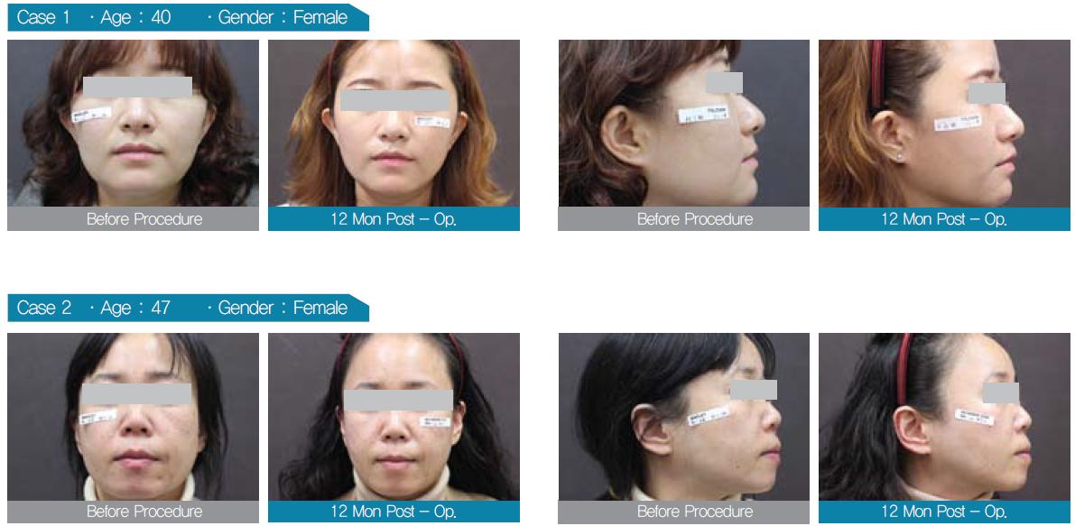 คำอธิบาย: http://bangkoklaserclinic.com/admin/ckfinder/userfiles/images/MINT%20LIFT/2015-07-17_17-15-12.png