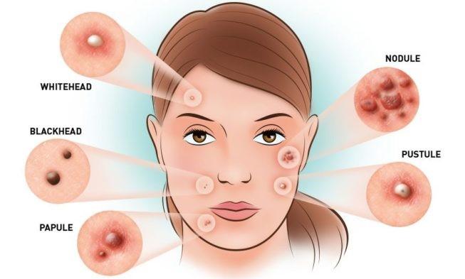 ผลการค้นหารูปภาพสำหรับ severe acne