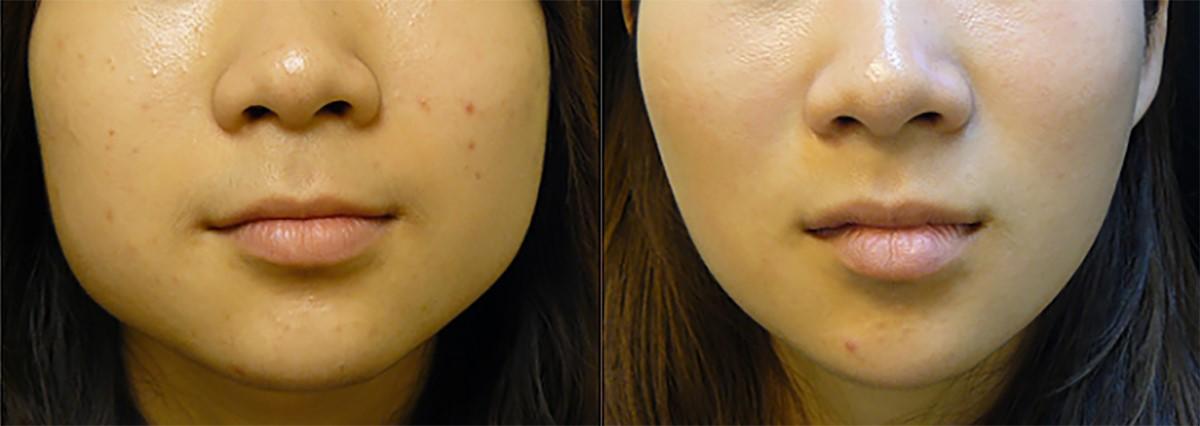 ผลการค้นหารูปภาพสำหรับ botox jaw