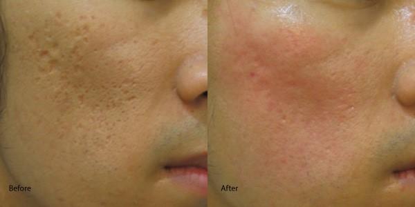 ผลการค้นหารูปภาพสำหรับ co2 acne scar